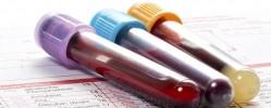 تفسیر چند نتیجه آزمایش خون